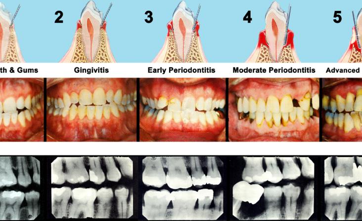 Periodontal Disease Billings MT