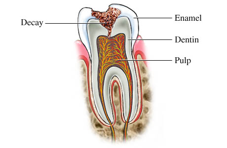 Periodontal Disease Billings MT