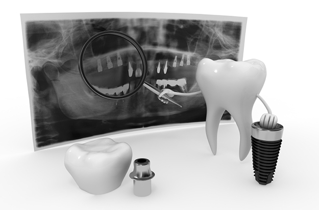 Dental Implants Billings MT