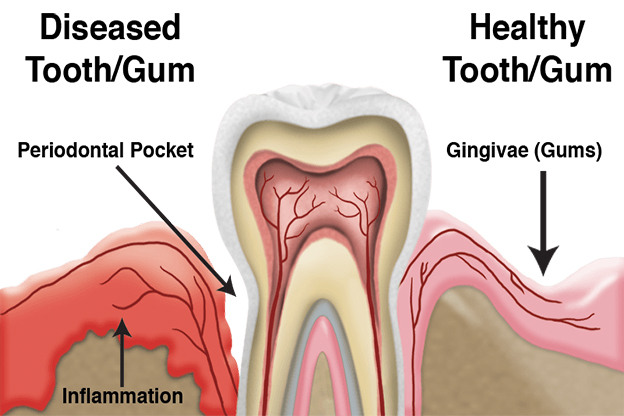 Periodontal Disease Treatment Billings MT