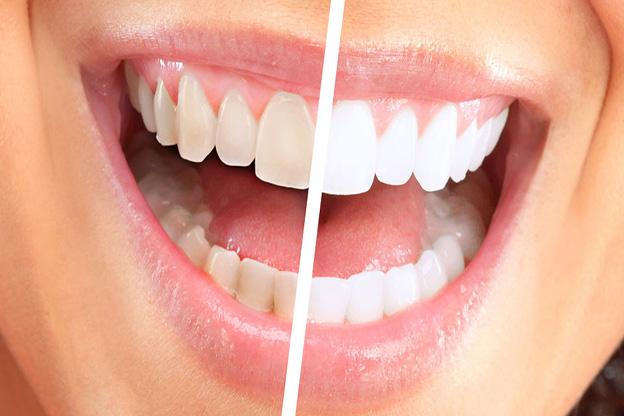 dental implants billings mt
