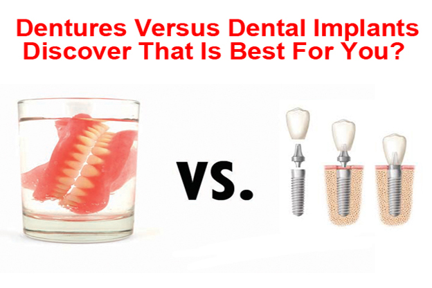 Dentures vs Dental Implants Billings MT
