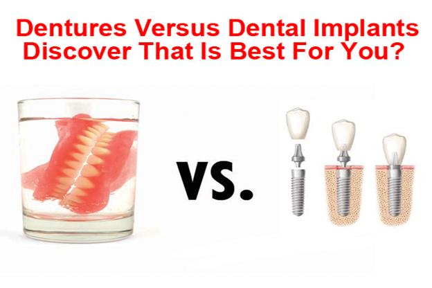 Dentures vs Dental Implants Billings MT